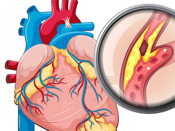 COVID-19 và bệnh lý tim mạch